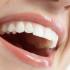 Diş protezinde 10 önemli tavsiye